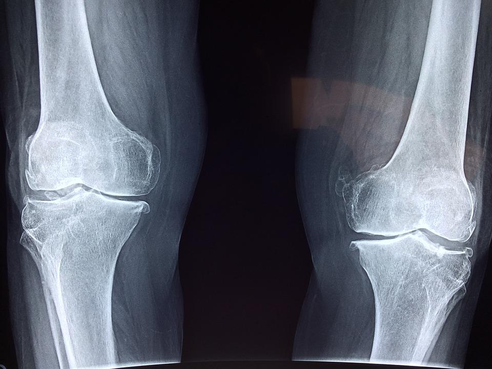 rentgenový snímek